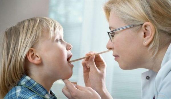 علاج اللوزتين للاطفال