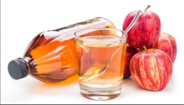 خل التفاح لعلاج الحزام الناري