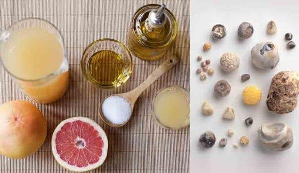 علاج التهاب المرارة بالاعشاب الطبيعية