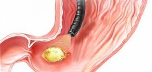 علاج التهاب المعدة المزمن