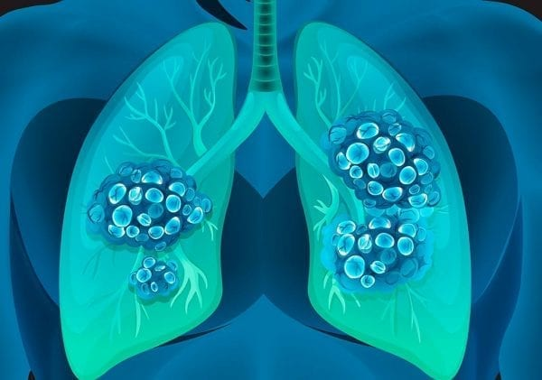 انواع سرطان الرئة