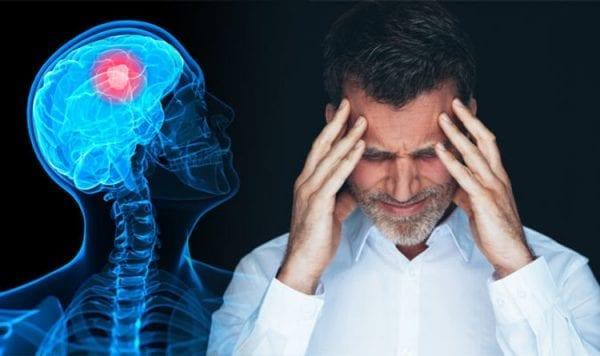 اعراض سرطان المخ واسبابه