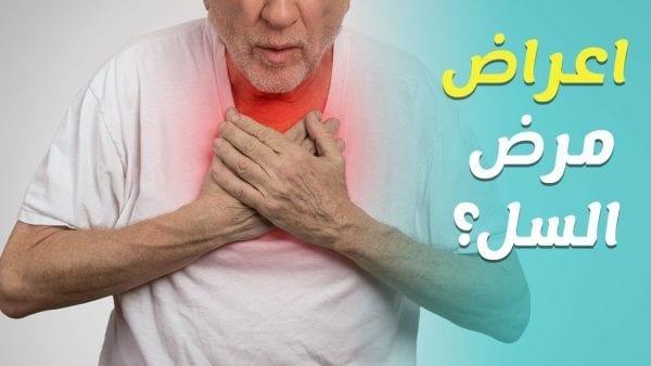 اعراض مرض السل